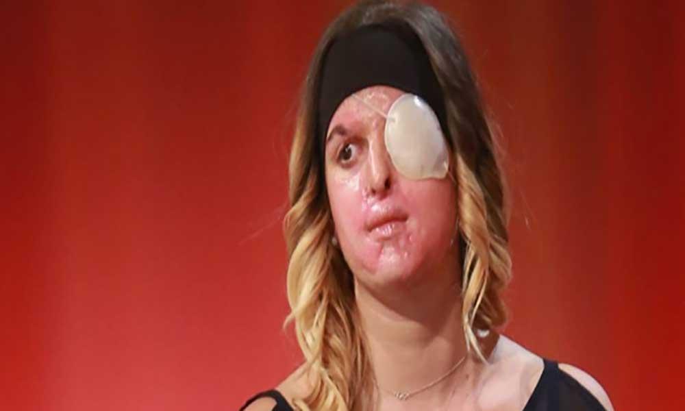 Ex-concorrente do Miss Itália atacada por cabo-verdiano aparece pela primeira vez em público